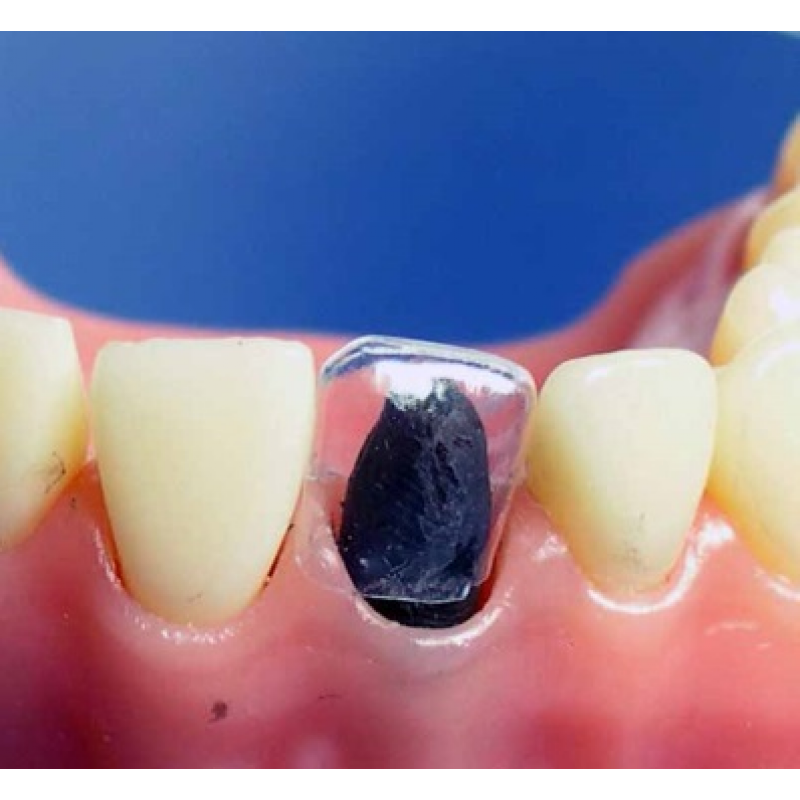 зубная матрица фото